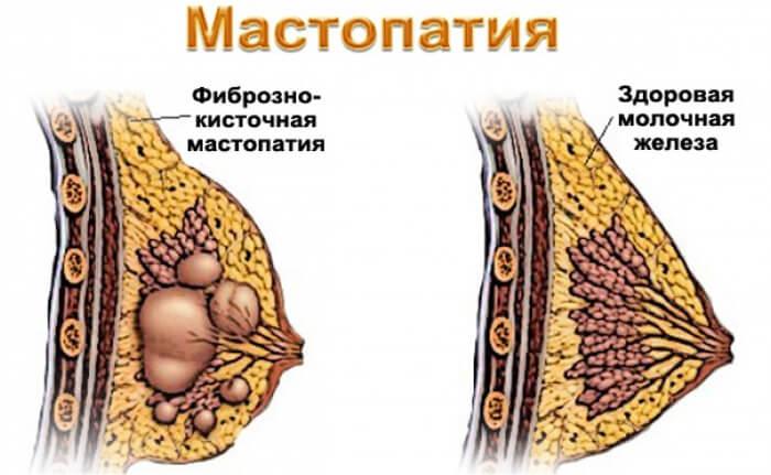 Основные механизмы развития мастопатии
